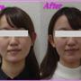 顔の歪み改善事例