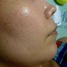 皮膚病を治したキッカケはPimハイドヴェールと#Lekarka#シムセラムからでしたの記事より