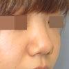 鼻尖形成術後のヒアルロン酸注入:いつ施術できるかの画像