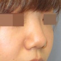 鼻尖形成術後のヒアル…