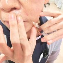 お顔にプラセンタ注射…