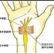 外傷性「手根幹症候群…