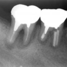 根管充填は、歯根の先…