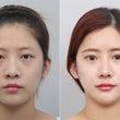DA美容外科の輪郭・…