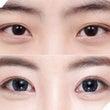 DA美容外科の目整形…