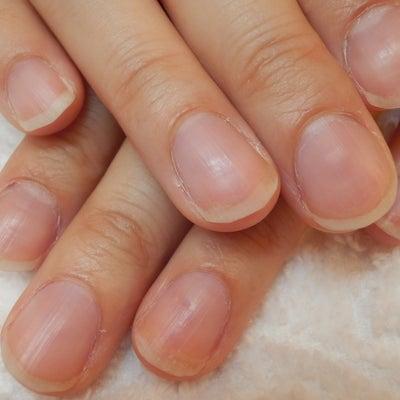 形が悪い爪も深爪矯正で美しくなります♪の記事に添付されている画像