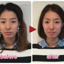 施術後の顔の変化にビ…
