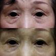 プレミアムPRP皮膚…
