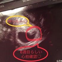 妊娠6週目の記事に添付されている画像