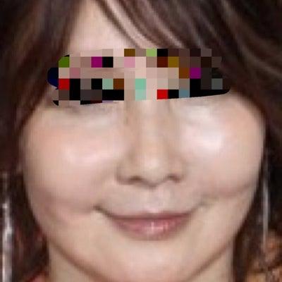 日本芸能人の美容施術と韓国カリスマドクターとの違いの記事に添付されている画像