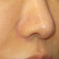 小鼻縮小術:縫合部の術後経過 キズを残さないための切除と縫合 の記事に添付されている画像