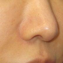 小鼻縮小術:縫合部の…