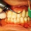 歯科衛生士の職域は守…