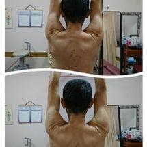 筋膜と筋肉の調整 運…