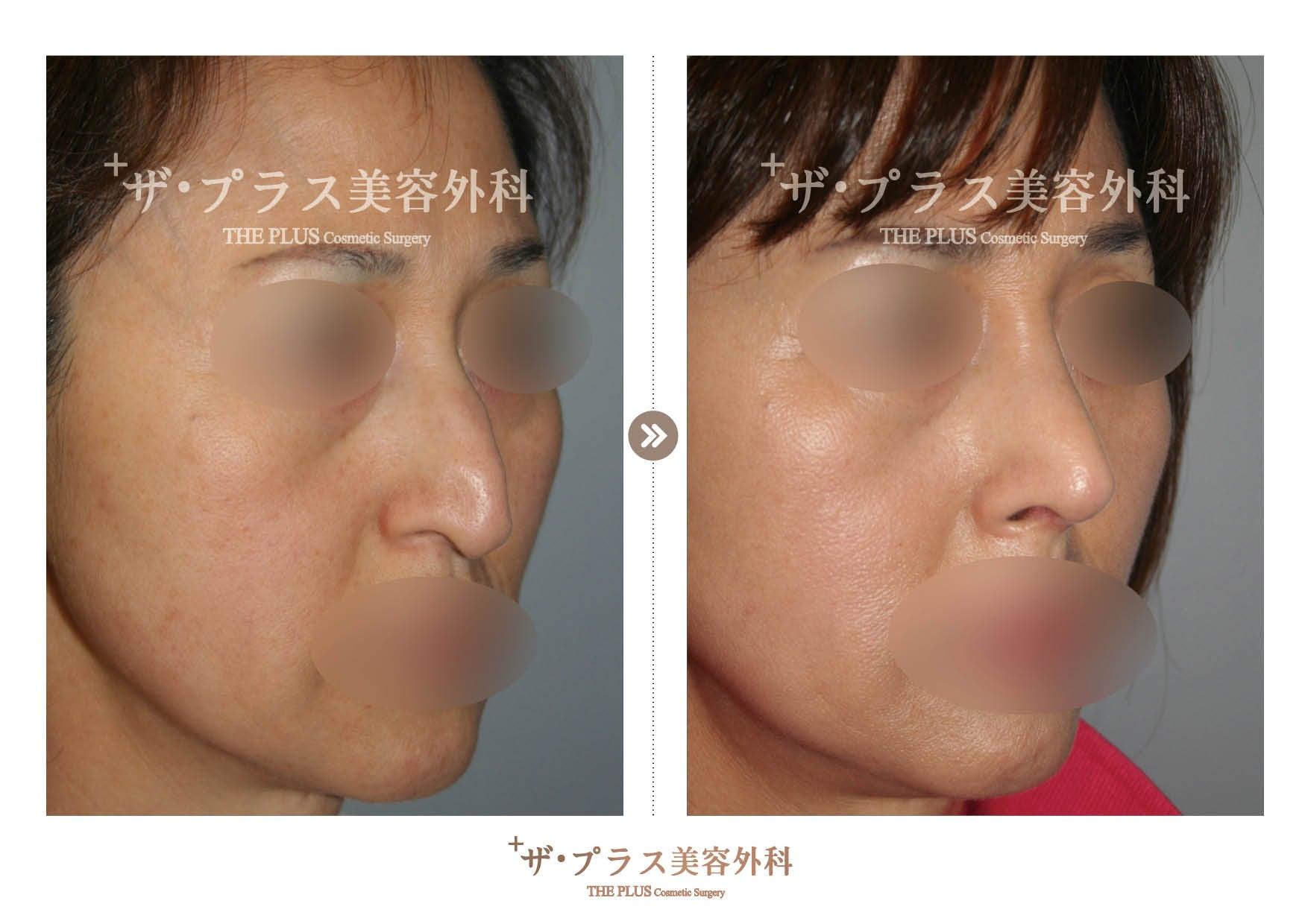 韓国鼻再手術・韓国美容整形