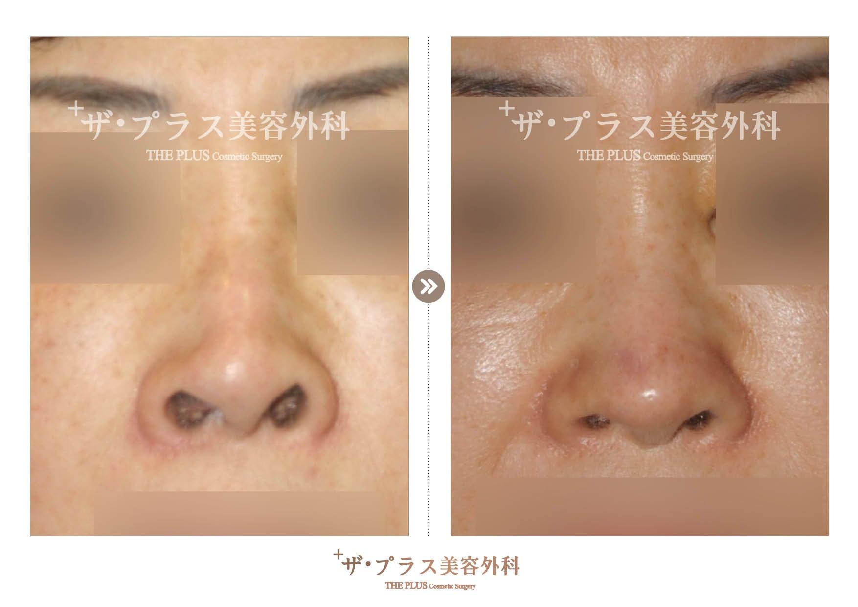 韓国鼻整形手術(韓国整形外科)