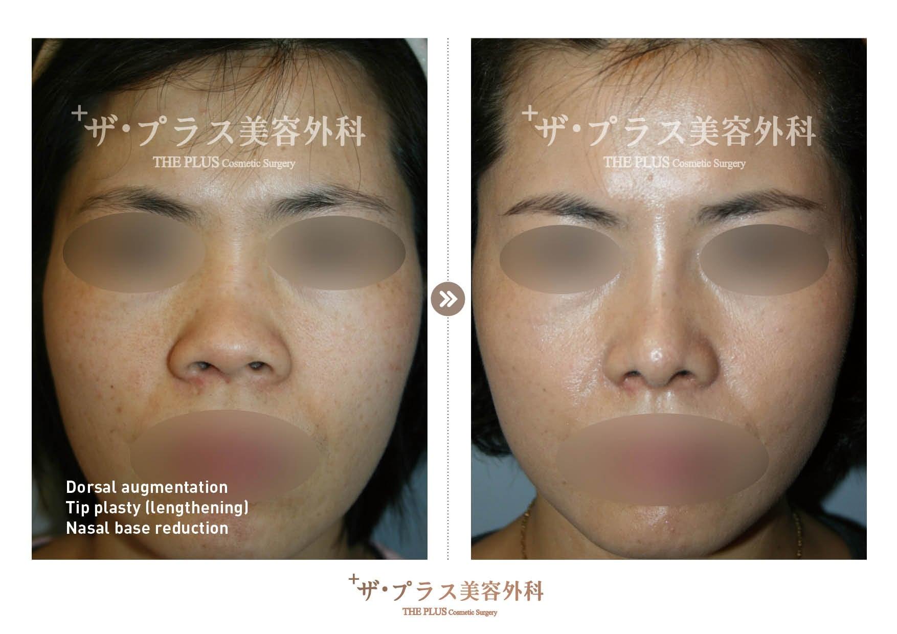 韓国鼻整形手術・韓国整形外科