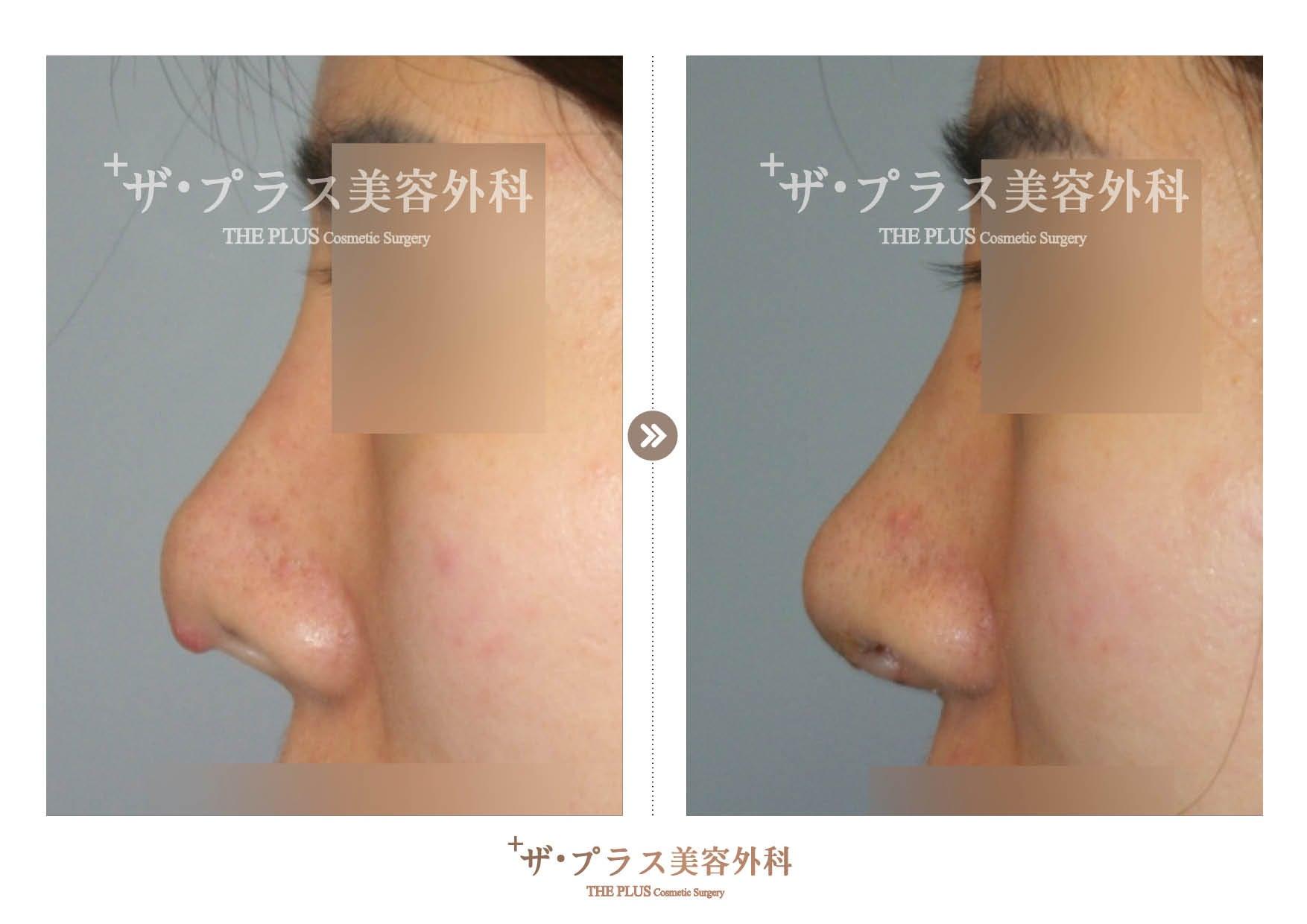 韓国で整形、鼻手術