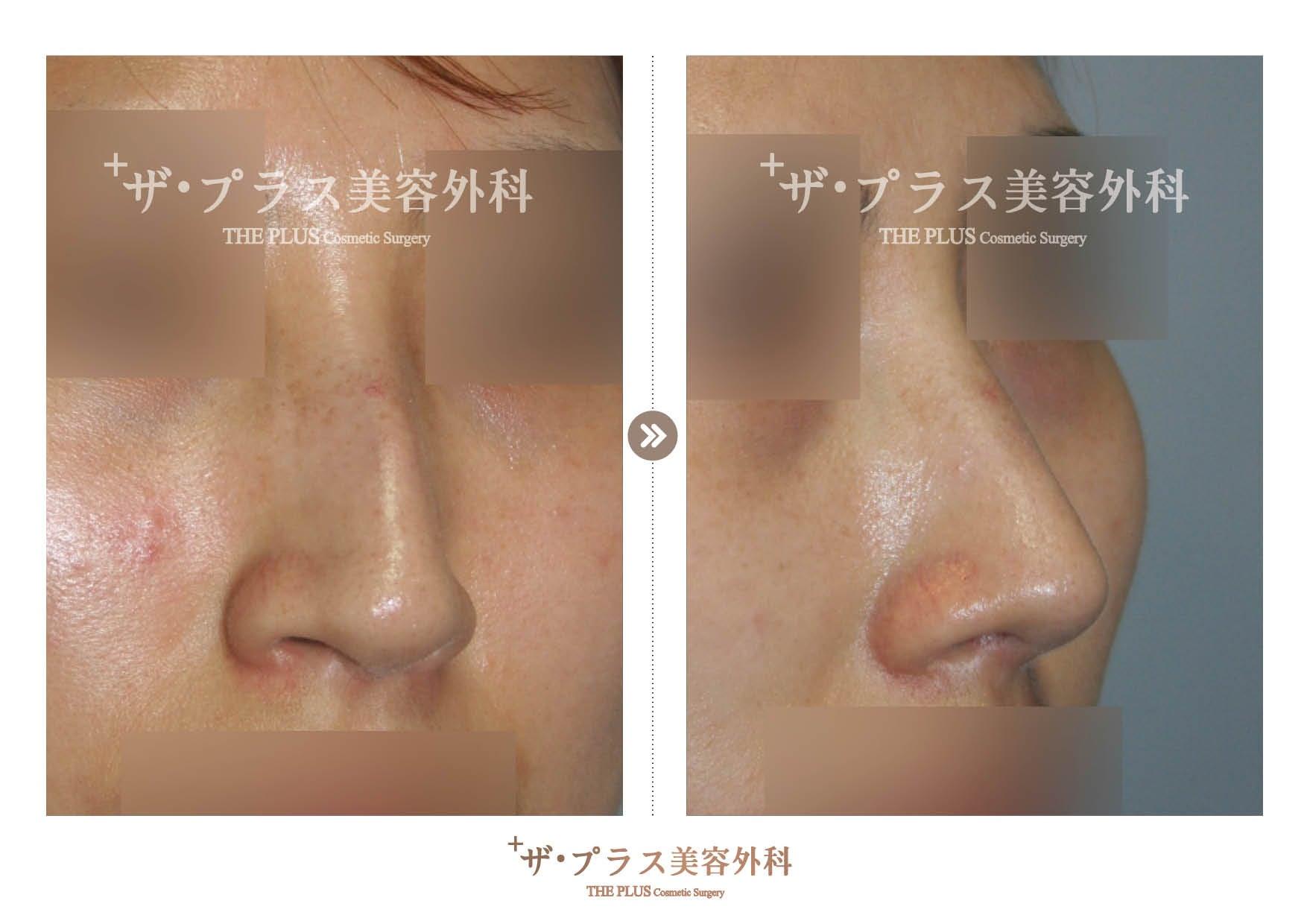 韓国鼻整形手術・韓国美容整形