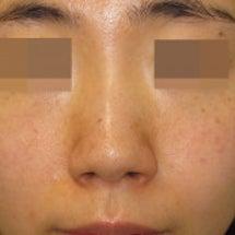 鼻尖形成術:鼻尖縮小…