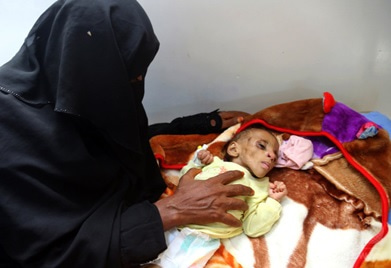 イエメン 「忘れられた戦争」で...