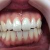 正しい歯磨きの仕方覚えていますか?の画像
