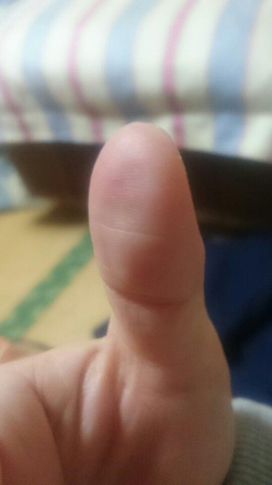 ない トゲ 指 チクチク