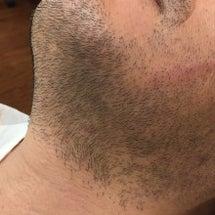ヒゲ脱毛の結果報告
