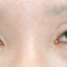 他院の下眼瞼拡大術・…