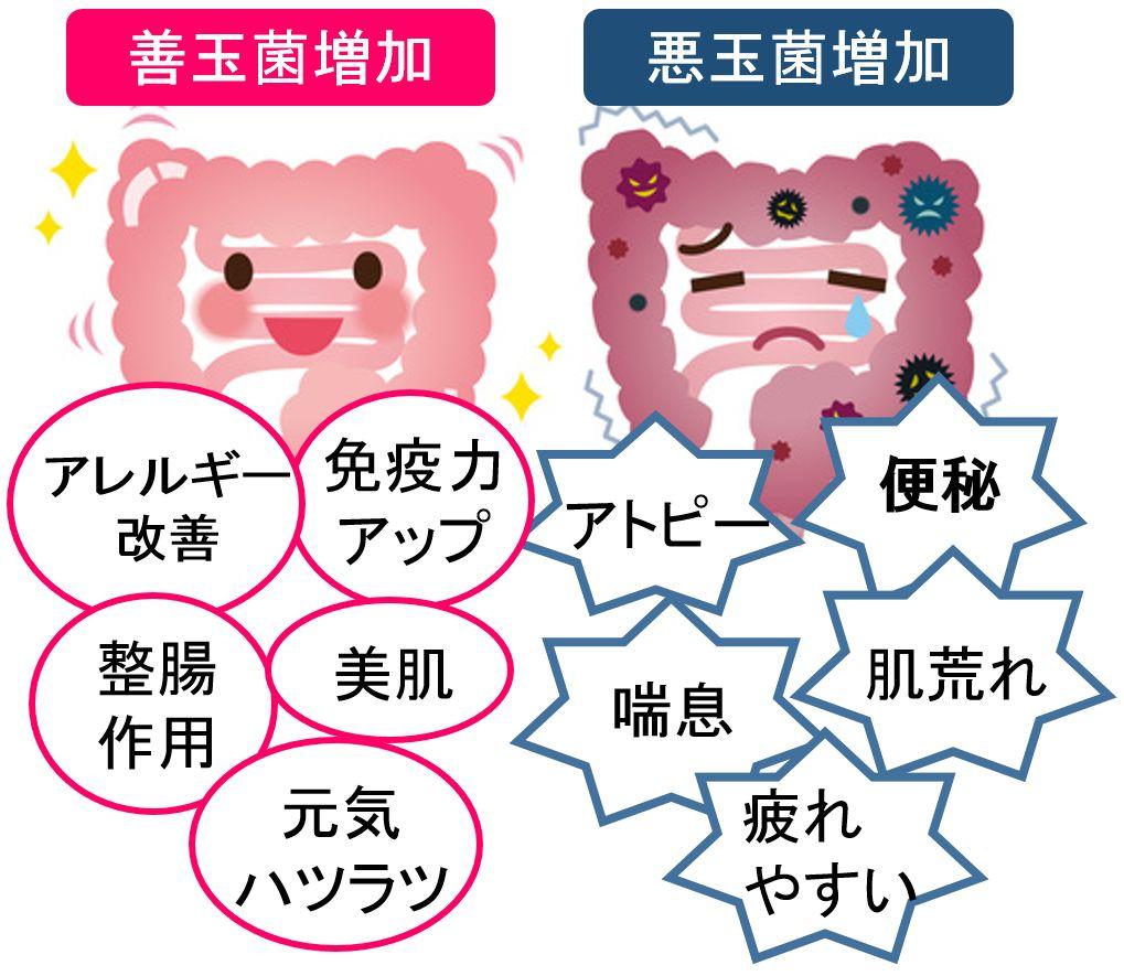 善玉菌と悪玉菌の違い