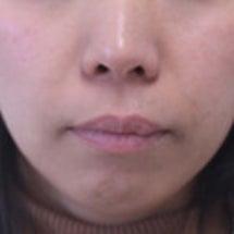 35歳 女性 上顎前…