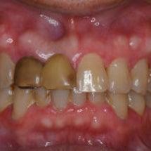 保険の差し歯をオール…