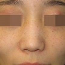 鼻尖形成術における鼻…