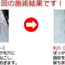 【頭皮セラピー】でスッキリの記事に添付されている画像