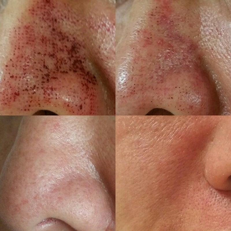 ピコ フラクショナル レーザー ピコフラクショナルでニキビ跡(クレーター肌)治療