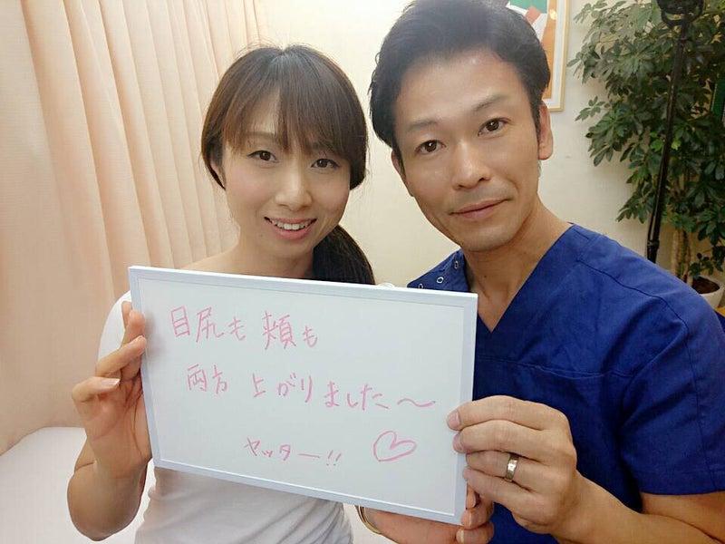 しおかわ鍼灸接骨治療院のリフトアップ小顔効果のある美顔鍼の感想