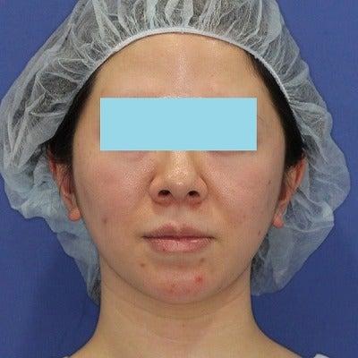30代女性「ミントリフトⅡminiS flex(シークレットリフト)18本」術後の記事に添付されている画像