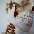 【DRT症例】顎がず…