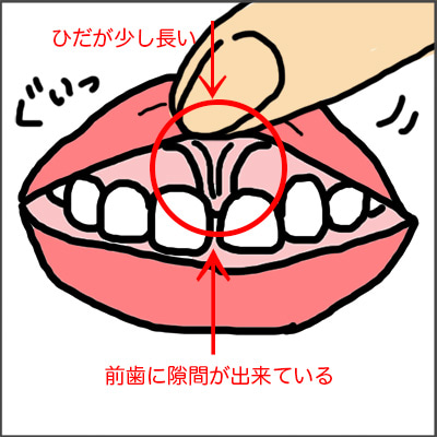 2歳歯科健診_上唇小帯肥厚