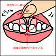 2歳 歯科健診へ 虫…