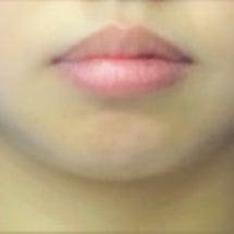 顎にヒアルロン酸(ク…