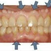 骨隆起・歯槽隆起・・・またまたプライベートですの記事に添付されている画像