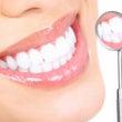 歯のクリーニング・意…