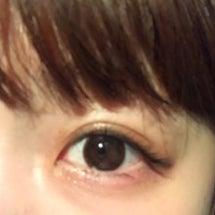 整形した腫れた目。