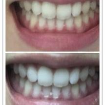 歯のセルフホワイトニ…