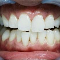 ハワイで買える!歯のホワイトニング☆の記事に添付されている画像