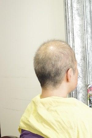抜毛症だってお洒落は楽しめるんだよー30 40年の抜毛に終止符そして不眠症からの解放。の記事より