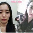 DA美容外科の目症例…
