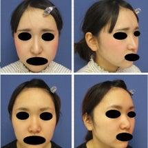 鼻の症例のご紹介♪