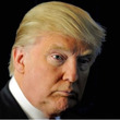 トランプ大統領の育毛…